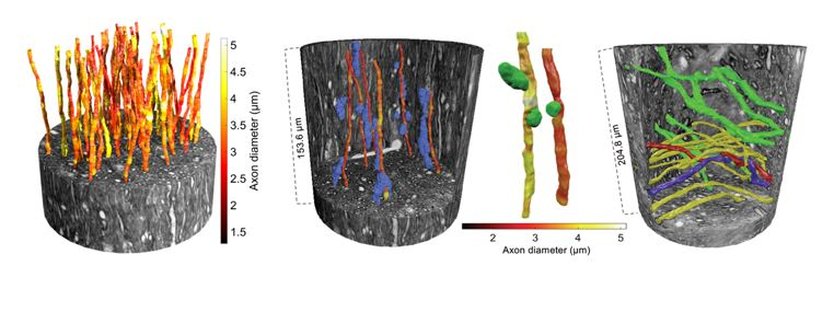 The picture: On left: Large axons of varying diameter (see colour bar) within an x-ray nano-holotomography volume of the white matter from a brain.   Second from left: the paths of the axons are affected by the positions of cell clusters (in blue).   Third from left: vacuoles (green) could also be found in the tissue and affected the diameter of axons. Right: Large crossing axons, travelling in different directions (represented by the green/yellow colours), in another region of the white matter. The large field-of-view accessible via the synchrotron imaging experiments allows for the tracking of two axons that twist around each other (in red and blue).